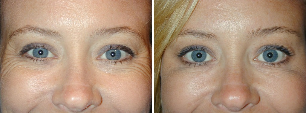 botox-crows-feet-pre-and-post