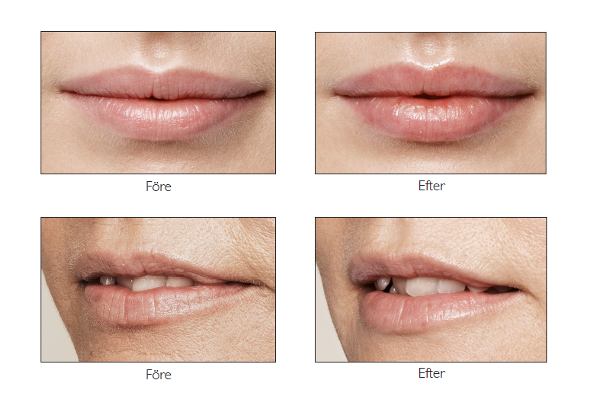 lips_before_after