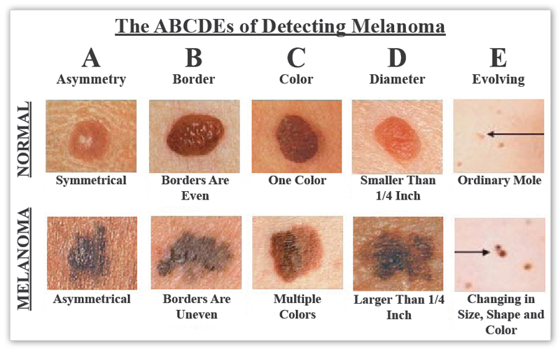 abcdes-of-melanoma-large
